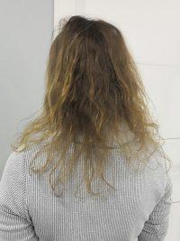 לפני מילוי שיער דליל לנשים