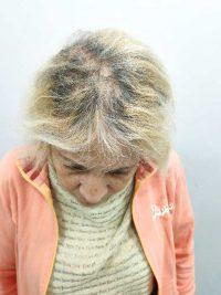 מילוי שיער דליל בשיטת מיקרוליינס